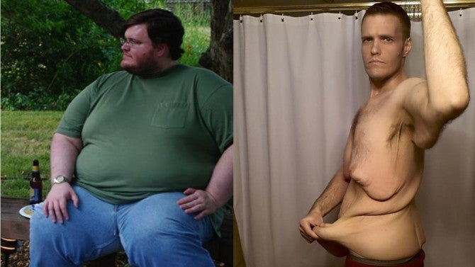 Man Bravely Shows Excess Skin after Naturally Losing 400 ...