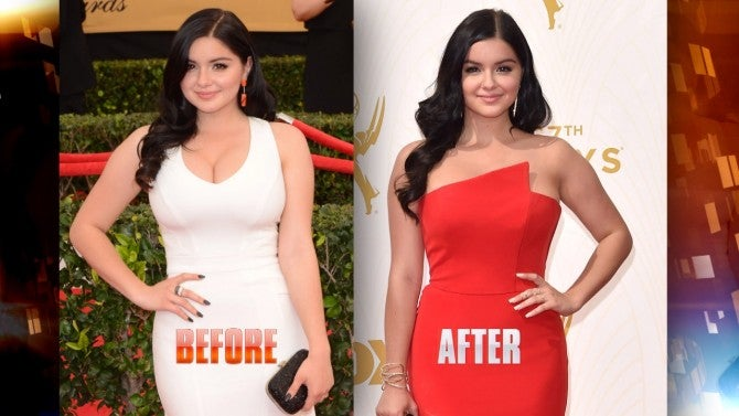 Ariel Winter before and after breast reduction surgery
