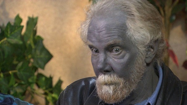 Blue Man Paul Karason Dies At 62 | Inside Edition