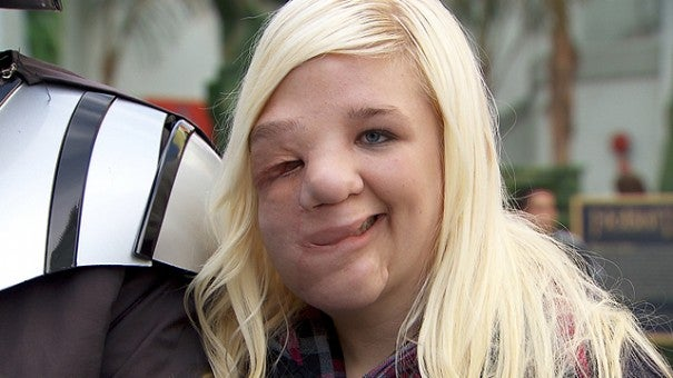 Facial Surgery Gives Teen A New Look On Life Inside Edition