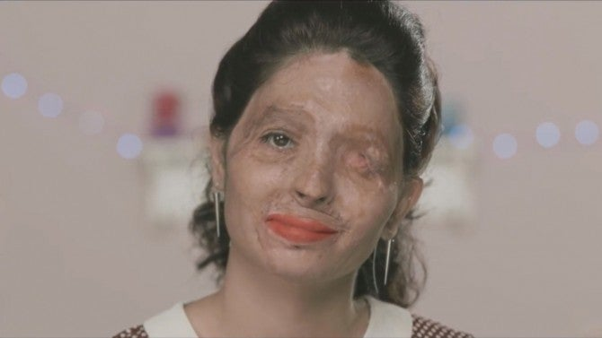 Burn Victim Creates Powerful Make-Up Tutorial to Call for ...