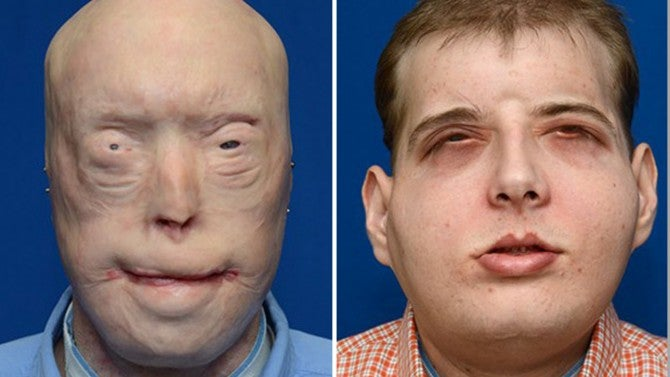 A Horribly Burned Firefighter Gets The Most Extensive Face