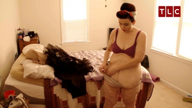 Woman Who Lost 246 Pounds Reveals Her Loose, Sagging Skin -8208