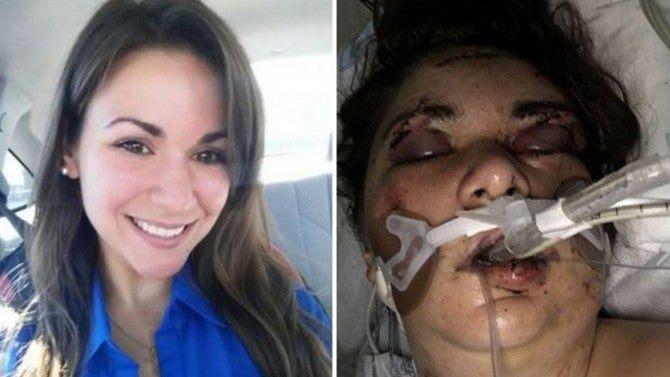 Woman In Coma After Alleged Attack By Roommate From