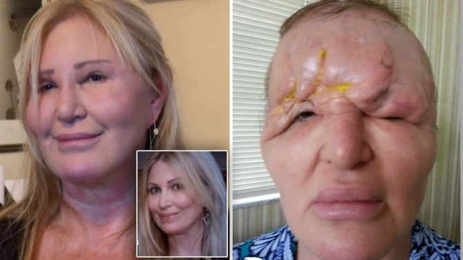 Woman Says Negative Reaction To Cosmetic Injections Left