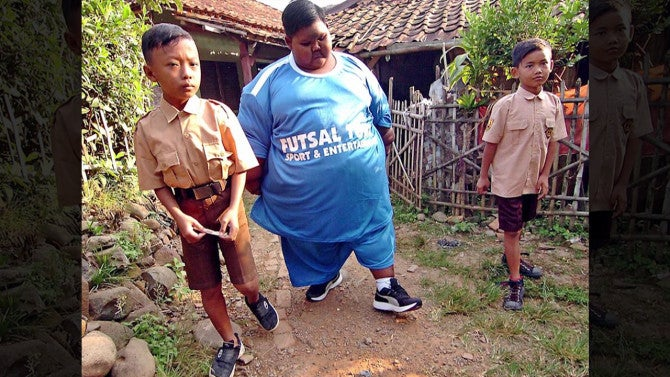 Morbidly Obese 10 Year Old Who Weighed 423 Pounds
