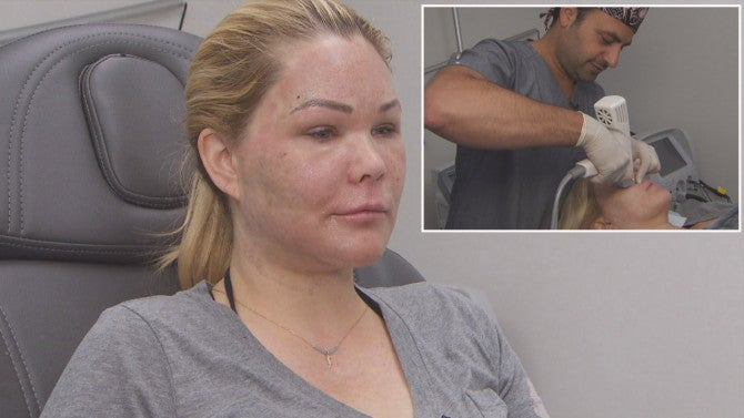 Why Is Shanna Moakler S Face So Swollen Ex Miss Usa