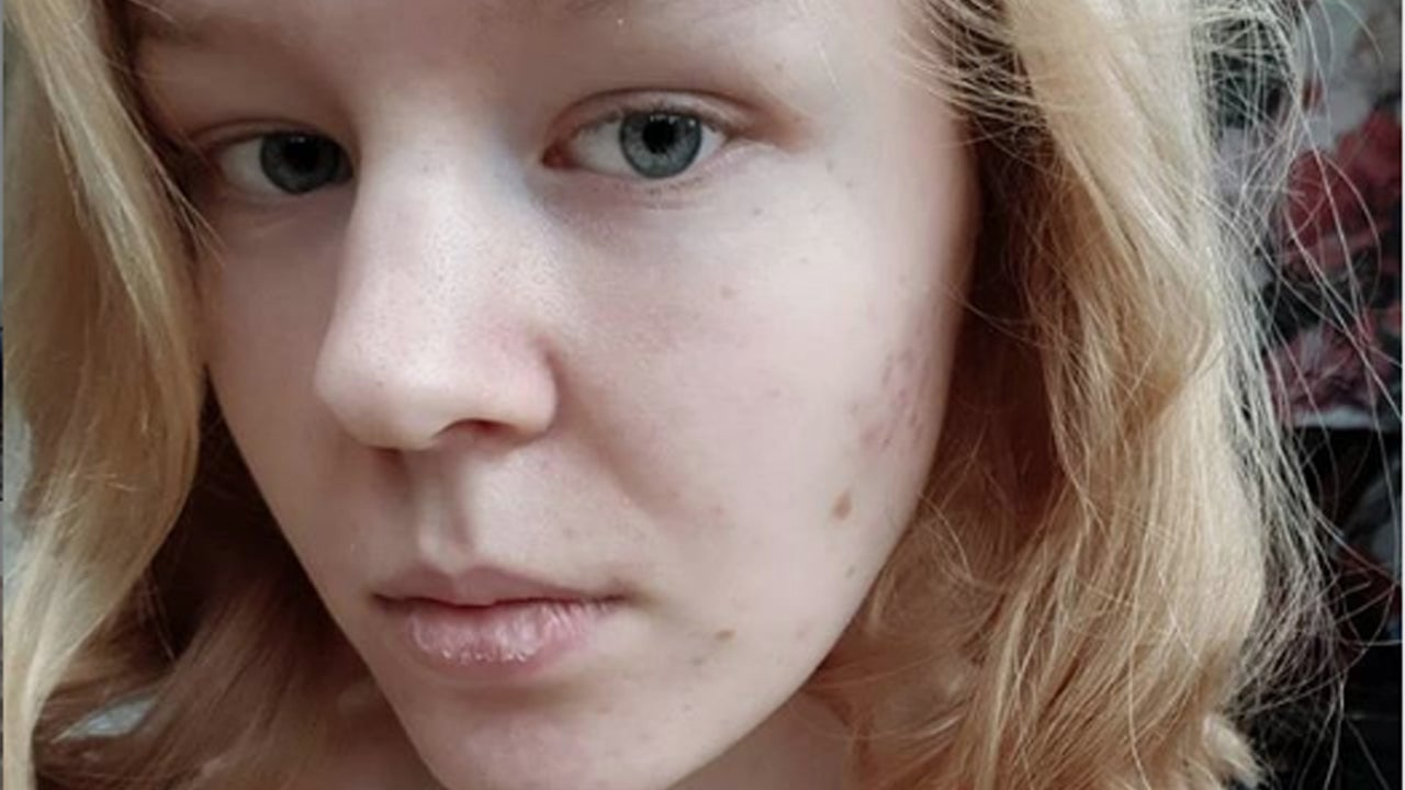 Noa Pothoven: 17-Year-Old Chooses to Die After 'Unbearable Suffering'