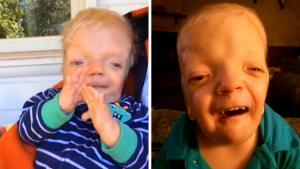 Meet 6-Year-Old Boy With Condition So Rare Doctors Named It After Him