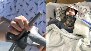 Florida 14-Year-Old Lucky to Be Alive After Anchor Pierces His Brain
