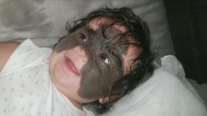 Baby Born With 'Batman Mask' on Face to Undergo Surgery