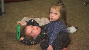 Parents Make Controversial Decision About Conjoined Twin Girls in Idaho