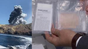 International Call for Human Skin Needed to Help Victims of New Zealand Volcano