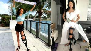 Injured Miss Florida Contestant Competes with Help of 'Pirate Leg'