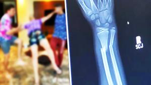 12-Year-Old Breaks Arm Doing 'Skull-Breaker Challenge'