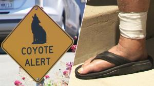 California Senior Needs Rabies Shots After Being Attacked by Coyote in Driveway