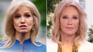 Did Kellyanne Conway Get Cosmetic Surgery?