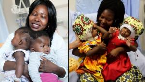 Conjoined Twins Miraculously Separated by 30 Medical Staff