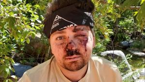 Hiker Jacob Velarde Survives 29 Hours On Only Water