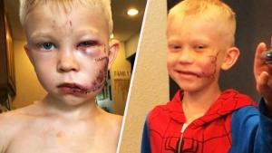 Boy Who Saved Sister From Dog Attack Invited to Spider-Man Set by Tom Holland