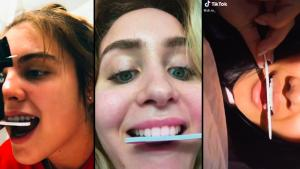 DIY Teeth-Filing TikTok Trend Is Giving Dentists a Toothache