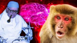 Cleveland Neurosurgeon Robert White Dreamed of Doing a Head Transplant
