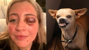 23-Year-Old Woman's Eyelid Ripped Off by Stylist's Chihuahua