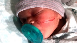 Newborn Gets Gash on Face From C-Section Scalpel That Required 13 Stitches