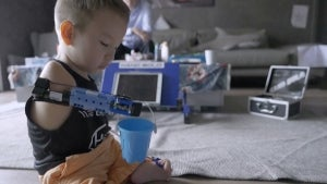 8-Year-Old Boy Gets Prosthetic Arm Made of Legos