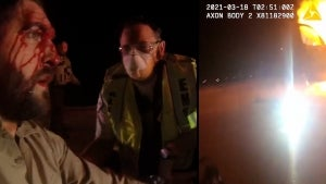 Minnesota Deputy Saved From Squad Car by Other Officers Just Before It Explodes