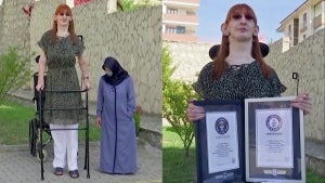 24-Year Old From Turkey Holds Guinness World Record for Tallest Living Woman