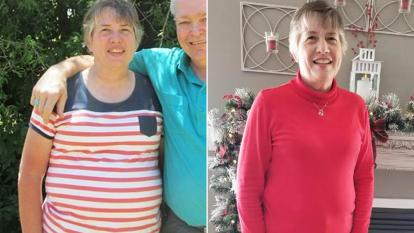 Kim Turner before (left) and after (right) discovering she had a 20-pound tumor on her stomach.