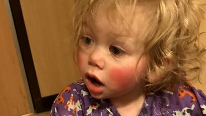 1-year-old Ivy Angerman is even allergic to her own tears.
