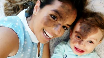 Little Enzo beams as his mom sports the same birthmark.