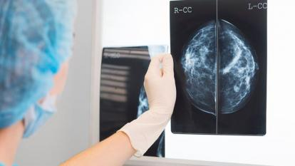 Four patients developed breast cancer after receiving organs from same donor.