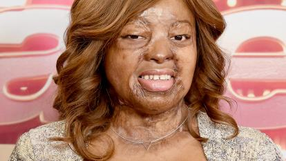 "Kechi Okwuchi was left with third-degree burns over 65 percent of her body following a plane crash, but that doesn't keep her from wowing on the ""America's Got Talent: The Champions"" stage."