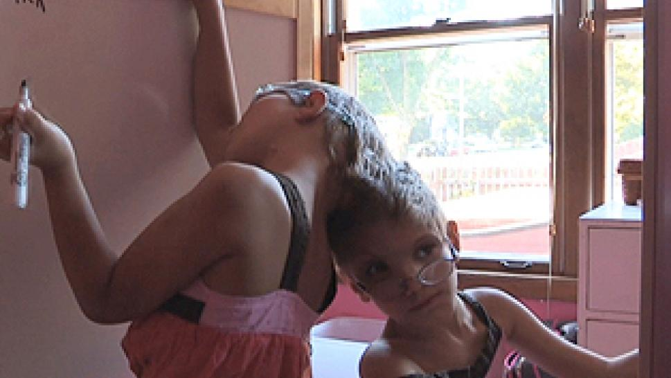 Conjoined Twins Hope For Separation Inside Edition