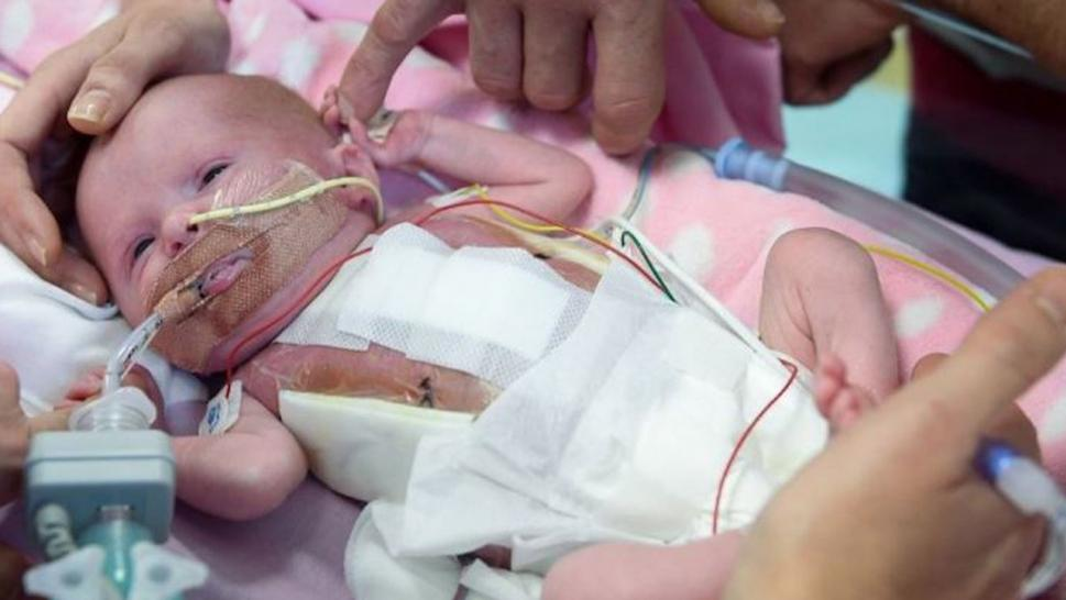 UK: Baby girl survives after being born with heart outside her body