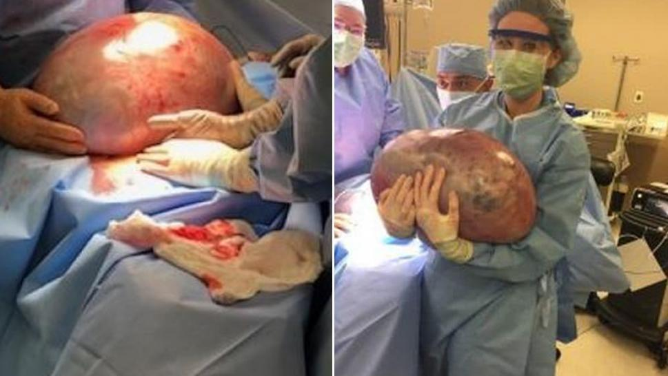 Woman's Weight Gain Turns Out to Be 50-Pound Ovarian Cyst