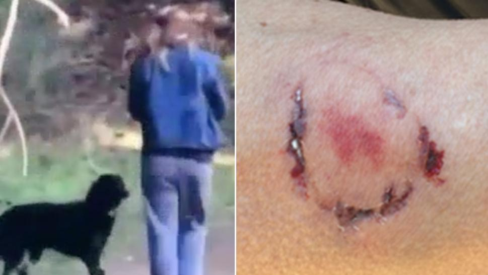 Police have arrested a woman suspected of biting a jogger after the woman's dog attacked.
