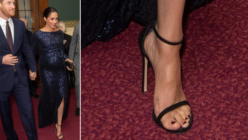 Meghan Markle's foot scar at London event