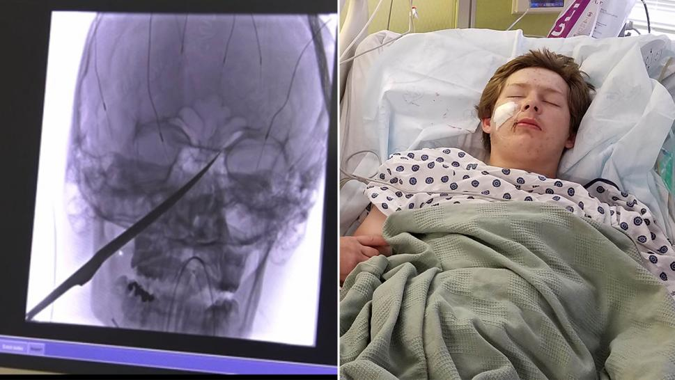 Eli Gregg, 15, survived after a 10-inch knife went through his face and into his skull.