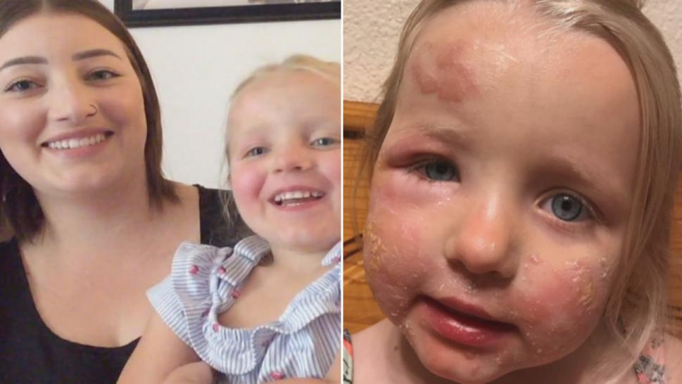 "Kaleigh Miller suffered horrific burns and blisters caused by what's known as ""margarita burn."""