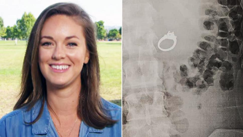 How Doctors Retrieved Engagement Ring After Bride-to-Be Swallowed It