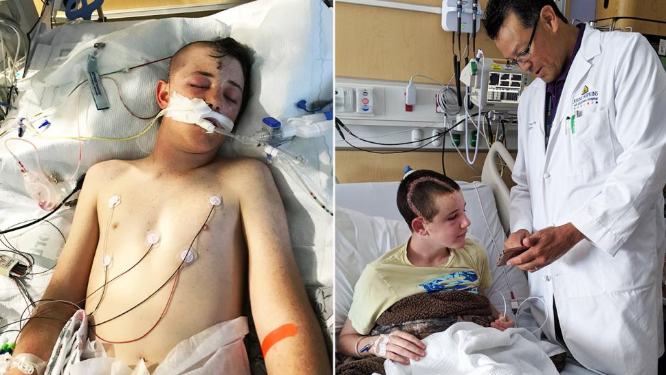 14-year-old Caleb Bennet made a miraculous recovery following the freak accident.