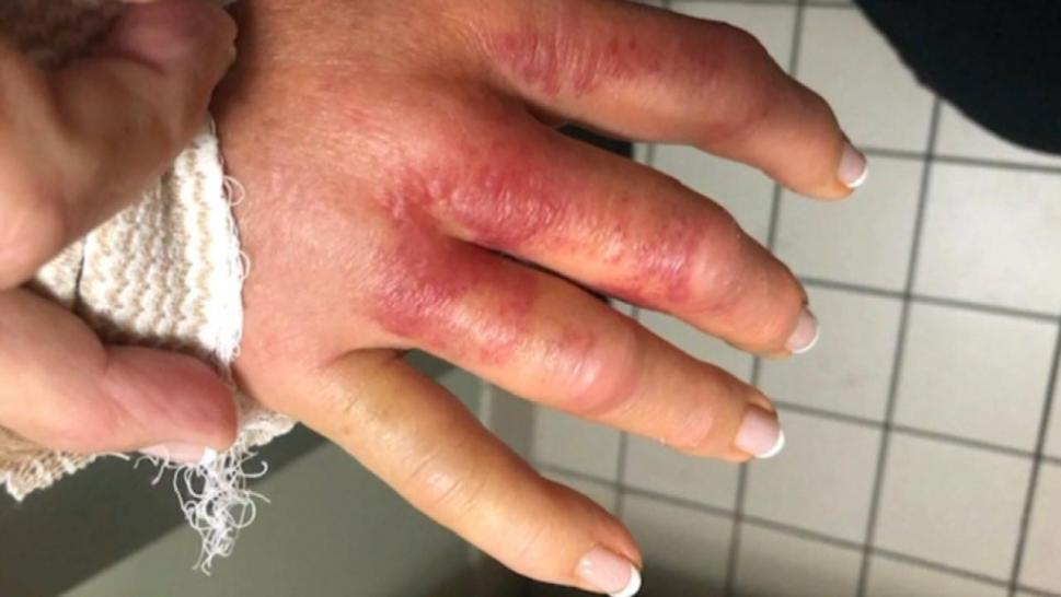Infection from a manicure