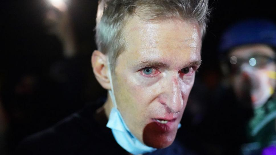 Portland, Oregon, Mayor Ted Wheeler was tear gassed by federal agents at Wednesday night demonstration.
