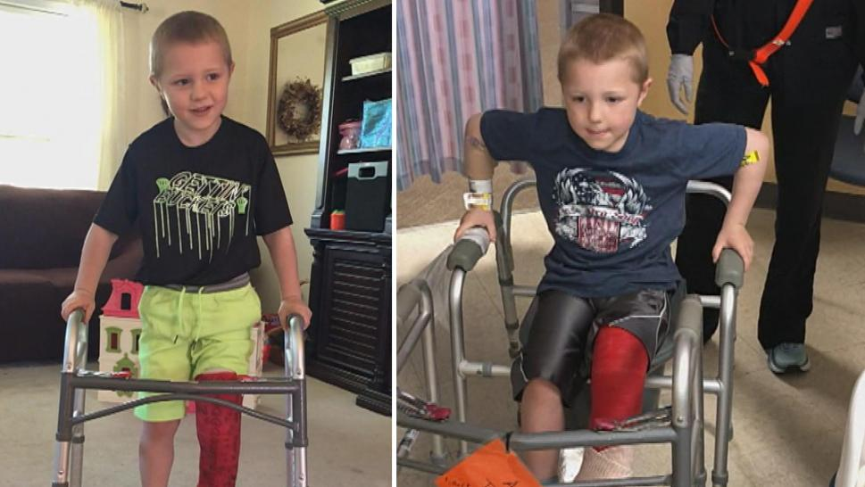 Boy who lost his foot in a lawnmower accident