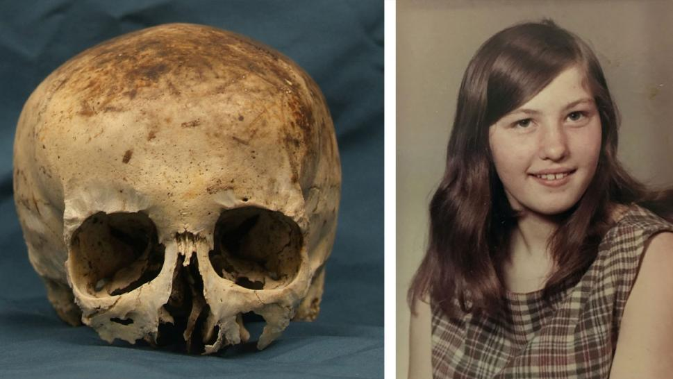 The partial skull of Wanda Ann Herr; Wanda Ann Herr at 19-years-old
