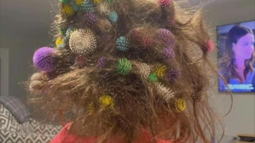 A girl with Bunchems stuck in her hair